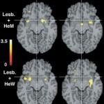 feromonios-cerebro